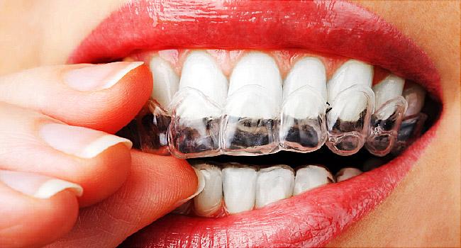 dental function